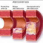 ateroskleroza1